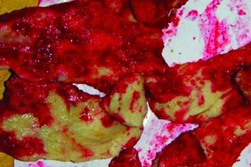 Thịt lợn có màu đỏ như máu  là do nấm hoặc vi khuẩn