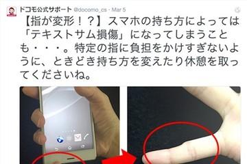 Ngón tay út bị biến dạng nếu dùng smartphone quá nhiều?