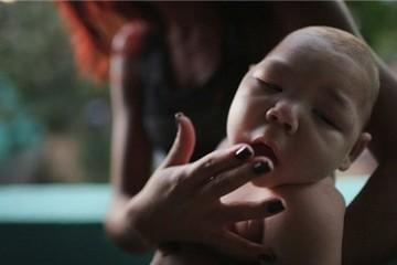 Thêm 2 phụ nữ nhiễm virus Zika ở Việt Nam