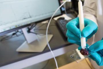 Chiếc bút phát hiện bệnh nhân ung thư chỉ trong 10 giây