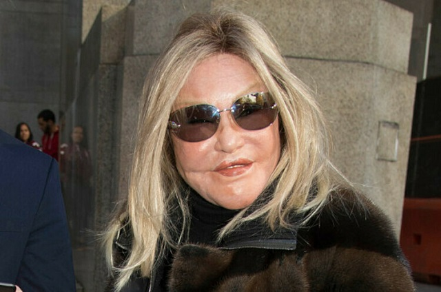 jocelyn-wildenstein-1575103227-8392-4072