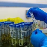 Người Indonesia nghi nhiễm ở TP HCM âm tính nCoV
