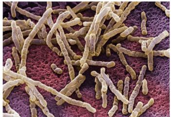 Dùng trí tuệ nhân tạo lập bản đồ vi khuẩn đường ruột
