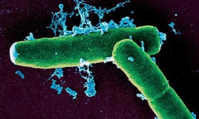 Bacillus anthracis, mầm bệnh gây ra bệnh than. Ảnh: CDC Trung Quốc.