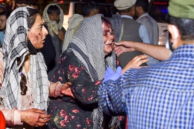 Một phụ nữ bị thương được đưa đến bệnh viện điều trị sau hai vụ nổ bên ngoài sân bay Kabul hôm 26/8. Ảnh: AFP.